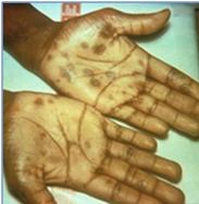 ferida_sifilis_descamação